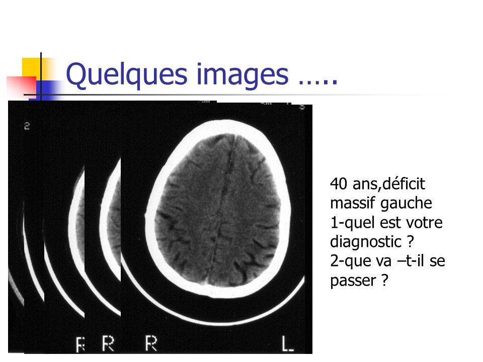 Quelques images ….. 40 ans,déficit massif gauche 1-quel est votre diagnostic ? 2-que va –t-il se passer ?
