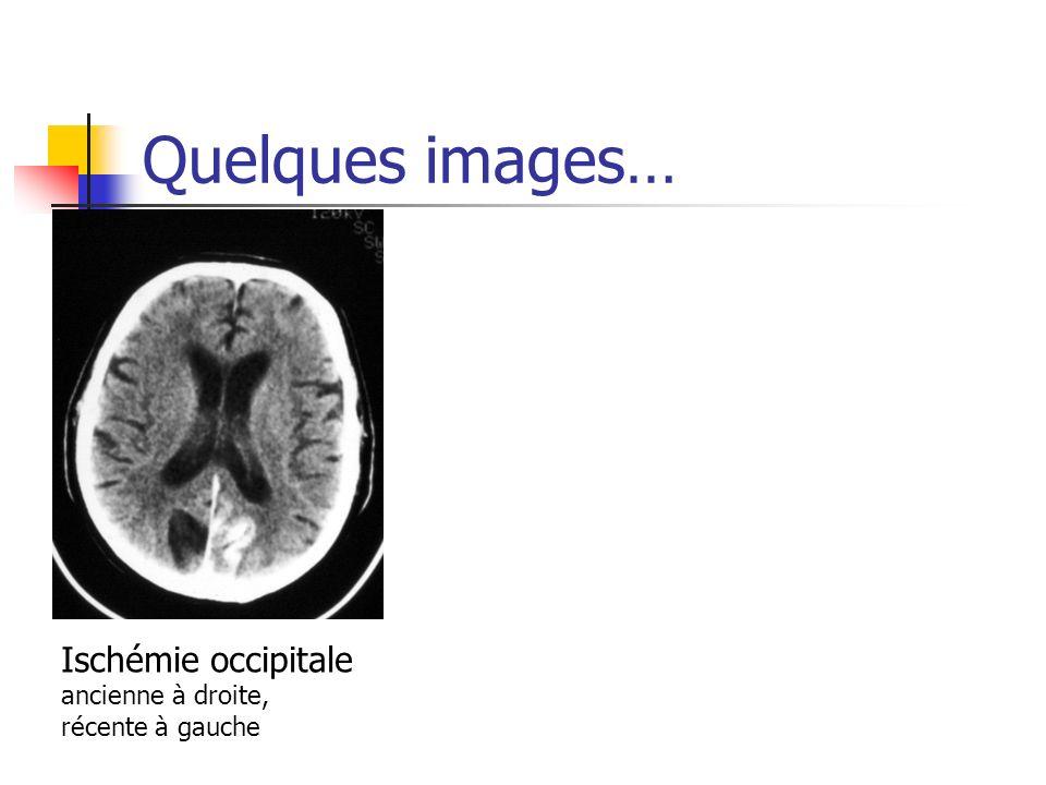 Quelques images… Ischémie occipitale ancienne à droite, récente à gauche