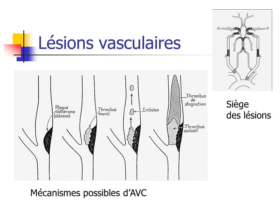 Lésions vasculaires Siège des lésions Mécanismes possibles dAVC