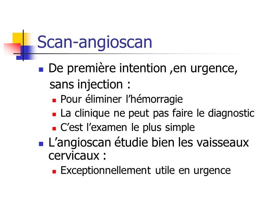 Scan-angioscan De première intention,en urgence, sans injection : Pour éliminer lhémorragie La clinique ne peut pas faire le diagnostic Cest lexamen l