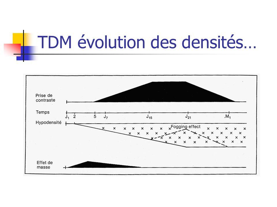 TDM évolution des densités…