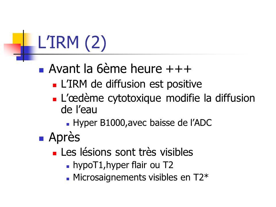 LIRM (2) Avant la 6ème heure +++ LIRM de diffusion est positive Lœdème cytotoxique modifie la diffusion de leau Hyper B1000,avec baisse de lADC Après