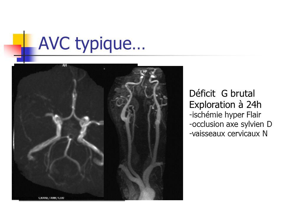 AVC typique… Déficit G brutal Exploration à 24h -ischémie hyper Flair -occlusion axe sylvien D -vaisseaux cervicaux N