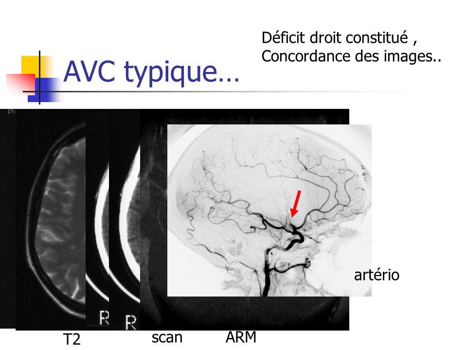 AVC typique… T2 scanARM artério Déficit droit constitué, Concordance des images..