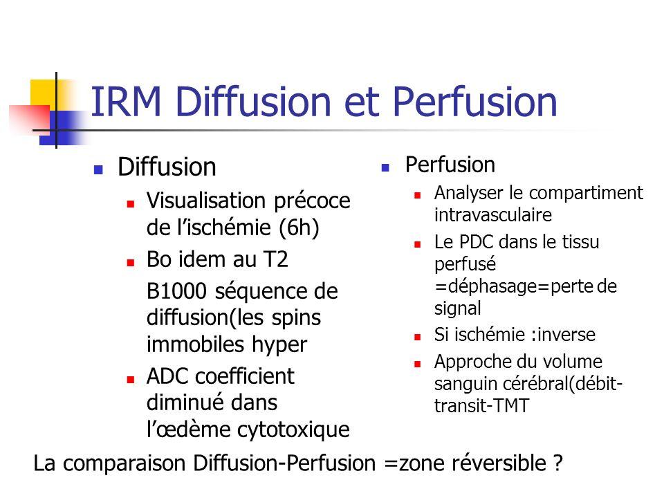 IRM Diffusion et Perfusion Diffusion Visualisation précoce de lischémie (6h) Bo idem au T2 B1000 séquence de diffusion(les spins immobiles hyper ADC c