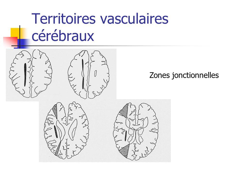 Territoires vasculaires cérébraux