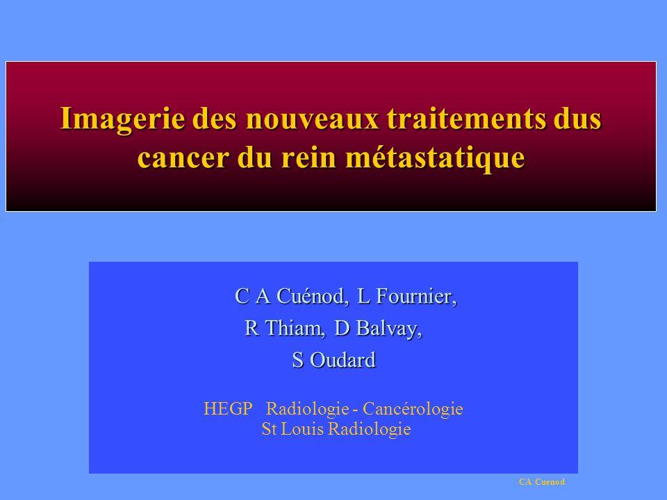 CA Cuenod Imagerie des nouveaux traitements dus cancer du rein métastatique C A Cuénod, L Fournier, R Thiam, D Balvay, S Oudard HEGP Radiologie - Canc