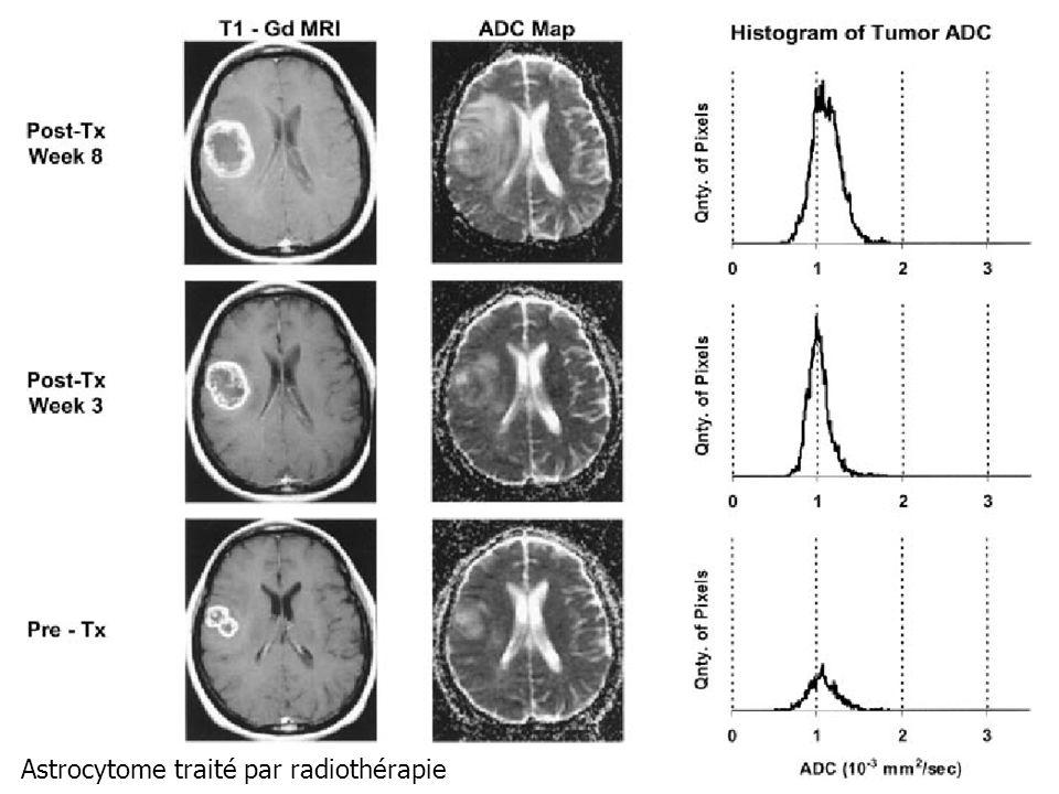 CA Cuenod Astrocytome traité par radiothérapie