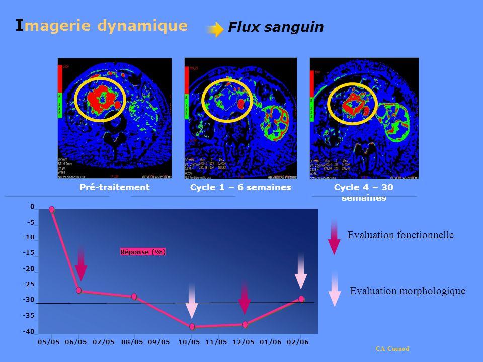 CA Cuenod 05/0507/0506/0508/0510/0509/0512/0511/0502/0601/06 -40 -35 -30 -25 -20 -15 -10 -5 0 Réponse (%) I magerie dynamique Flux sanguin Pré-traitem