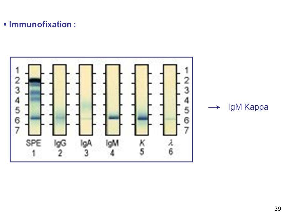 39 Immunofixation : IgM Kappa