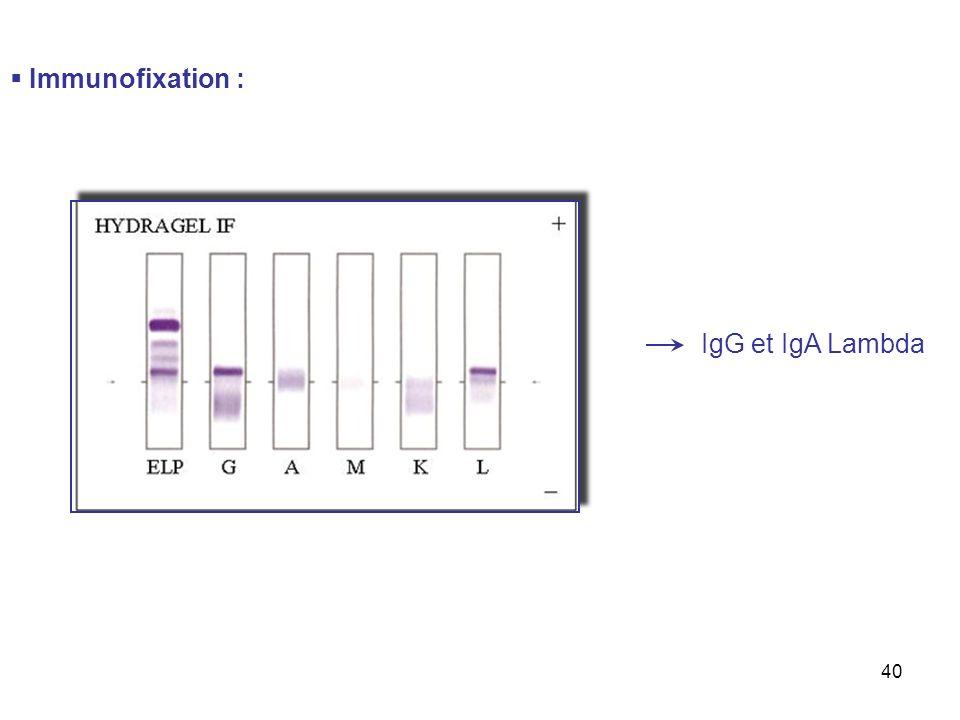 40 Immunofixation : IgG et IgA Lambda