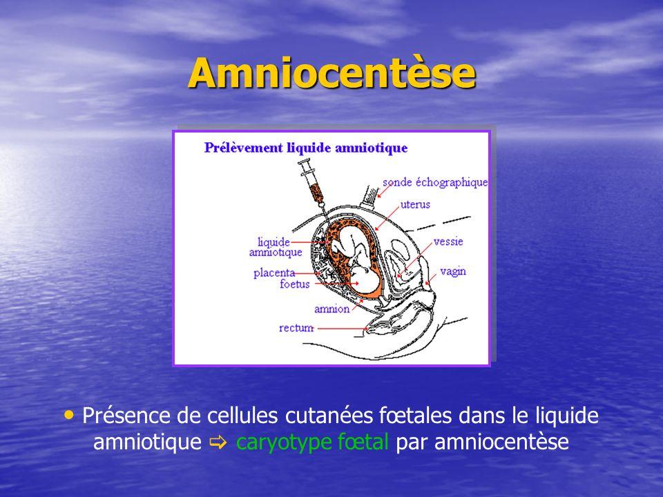Amniocentèse Présence de cellules cutanées fœtales dans le liquide amniotique caryotype fœtal par amniocentèse