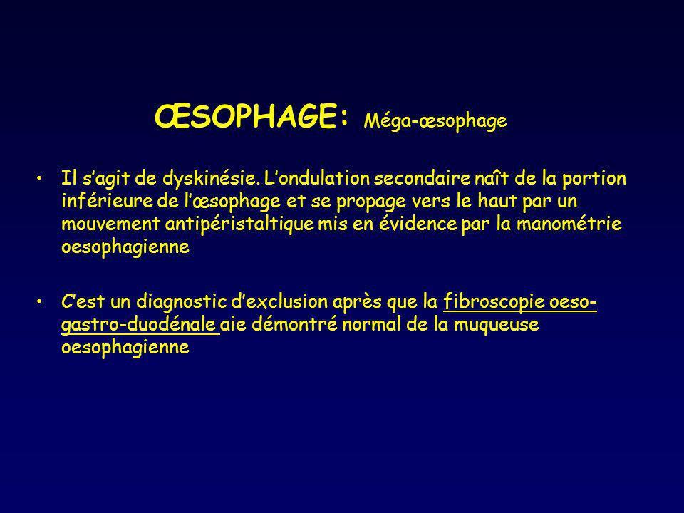ŒSOPHAGE: Méga-œsophage Il sagit de dyskinésie. Londulation secondaire naît de la portion inférieure de lœsophage et se propage vers le haut par un mo