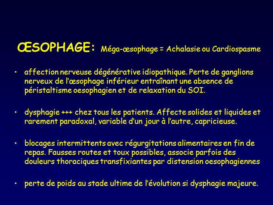 ŒSOPHAGE: Méga-œsophage = Achalasie ou Cardiospasme affection nerveuse dégénérative idiopathique. Perte de ganglions nerveux de lœsophage inférieur en