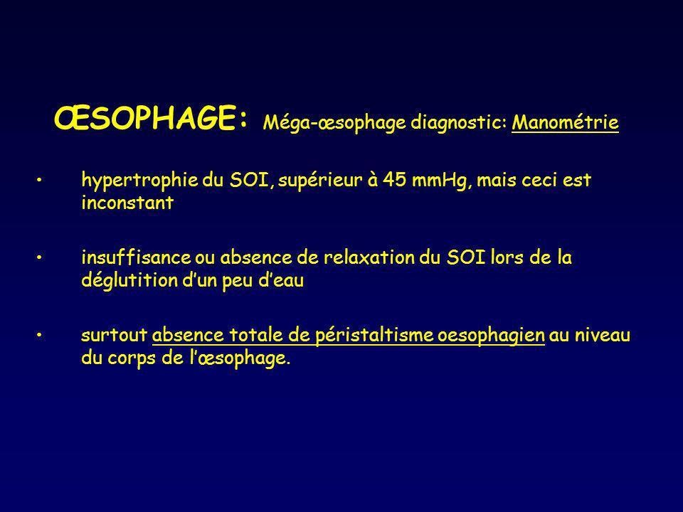 ŒSOPHAGE: Méga-œsophage diagnostic: Manométrie hypertrophie du SOI, supérieur à 45 mmHg, mais ceci est inconstant insuffisance ou absence de relaxatio