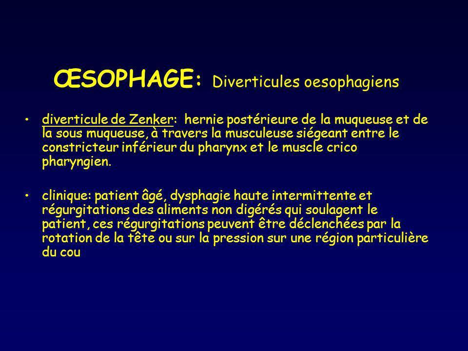 ŒSOPHAGE : Diverticules oesophagiens diverticule de Zenker: hernie postérieure de la muqueuse et de la sous muqueuse, à travers la musculeuse siégeant
