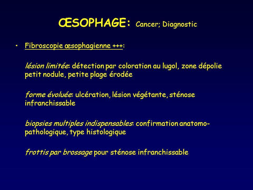 ŒSOPHAGE: Cancer; Diagnostic Fibroscopie œsophagienne +++: lésion limitée: détection par coloration au lugol, zone dépolie petit nodule, petite plage