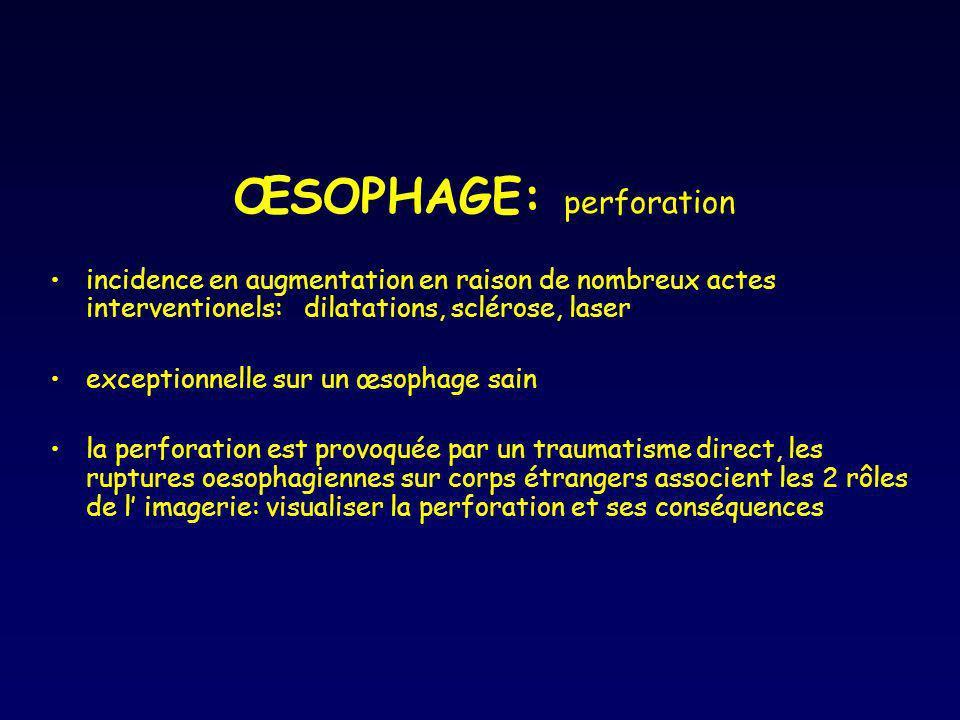 ŒSOPHAGE: perforation incidence en augmentation en raison de nombreux actes interventionels: dilatations, sclérose, laser exceptionnelle sur un œsopha