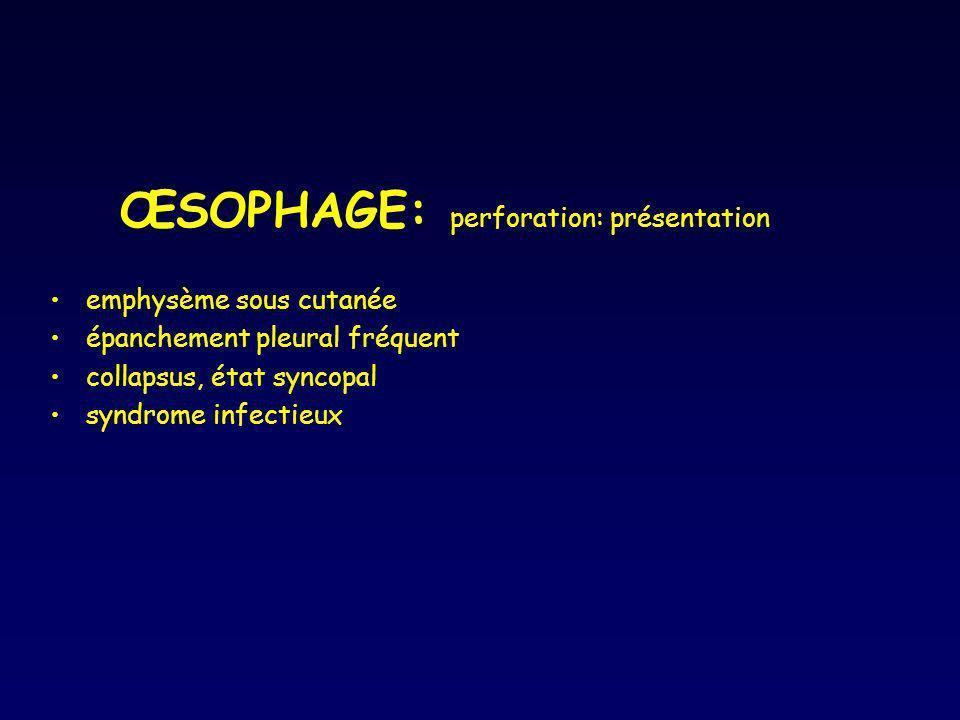 ŒSOPHAGE: perforation: présentation emphysème sous cutanée épanchement pleural fréquent collapsus, état syncopal syndrome infectieux