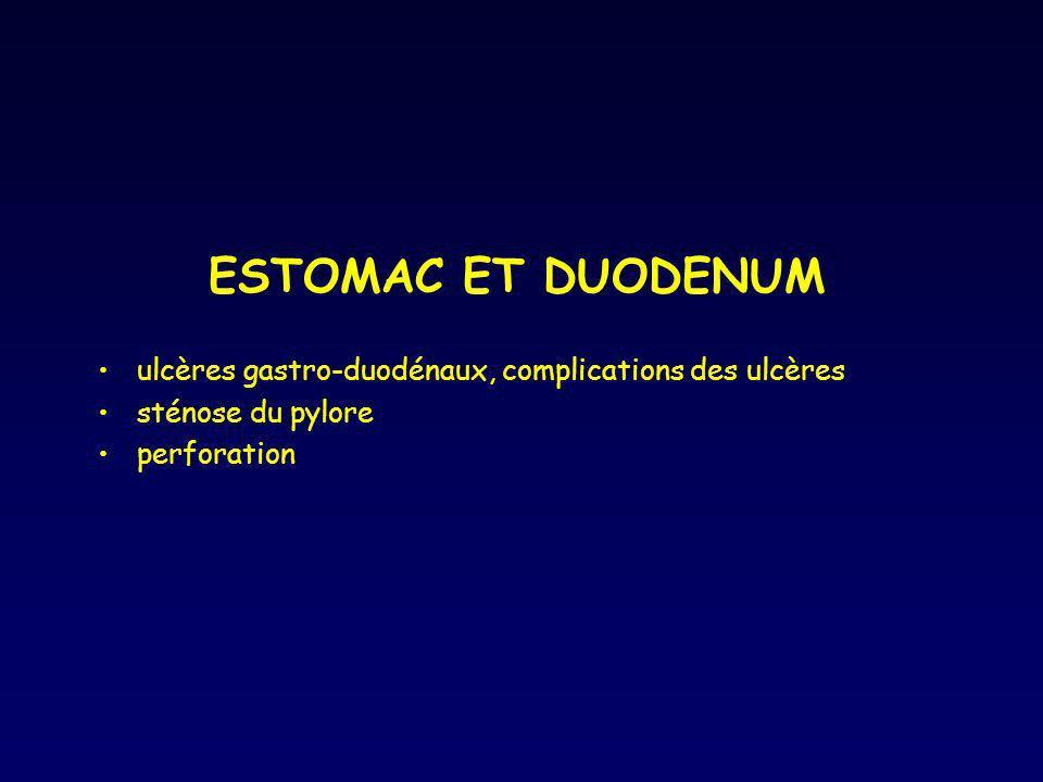 ESTOMAC ET DUODENUM ulcères gastro-duodénaux, complications des ulcères sténose du pylore perforation