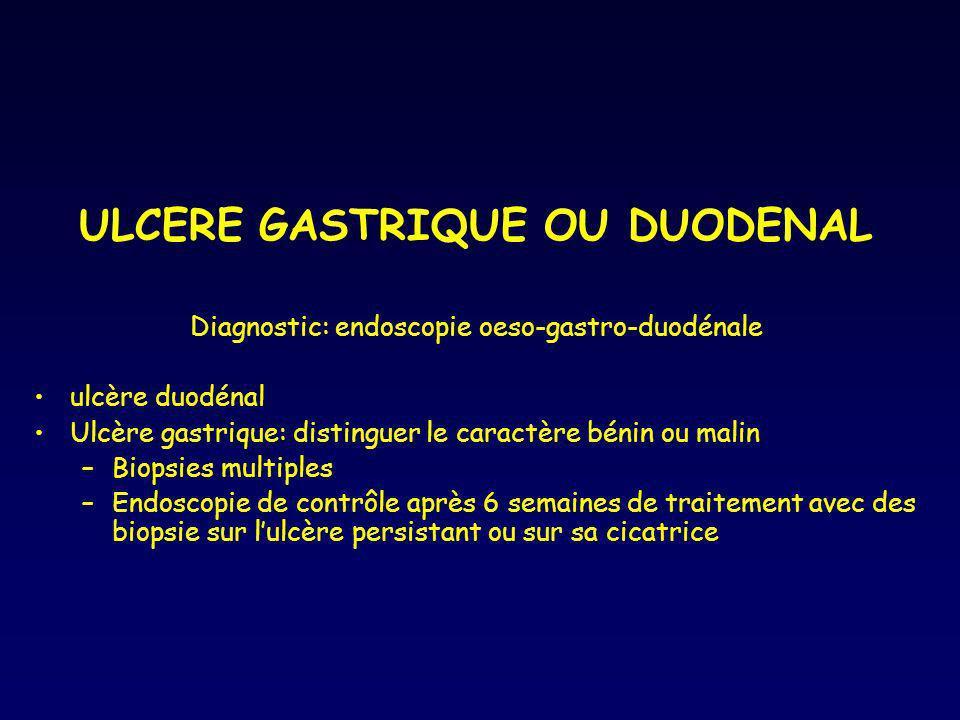 ULCERE GASTRIQUE OU DUODENAL Diagnostic: endoscopie oeso-gastro-duodénale ulcère duodénal Ulcère gastrique: distinguer le caractère bénin ou malin –Bi