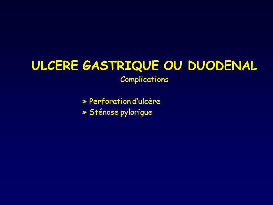 ULCERE GASTRIQUE OU DUODENAL Complications »Perforation dulcère »Sténose pylorique