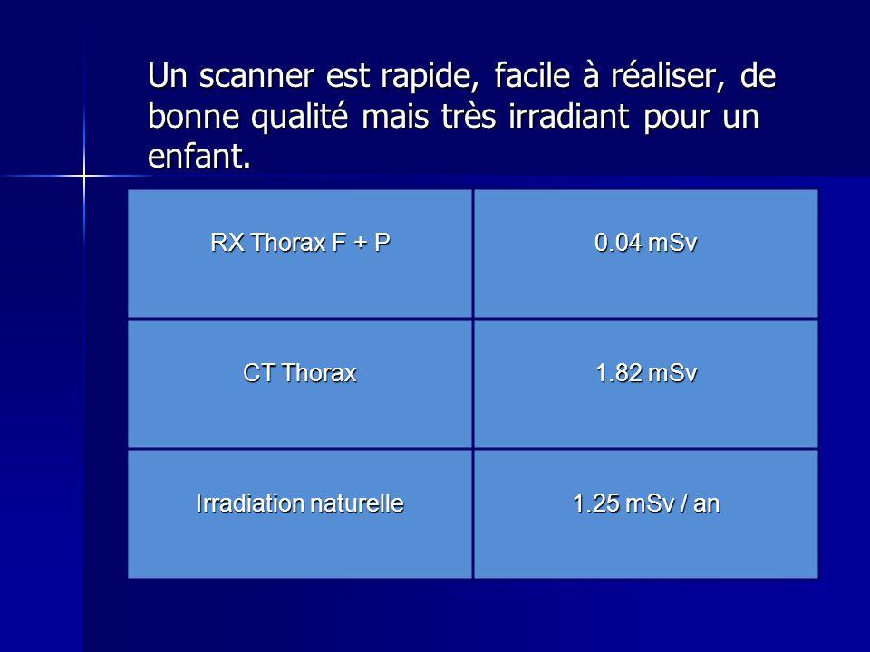 Un scanner est rapide, facile à réaliser, de bonne qualité mais très irradiant pour un enfant. RX Thorax F + P 0.04 mSv CT Thorax 1.82 mSv Irradiation
