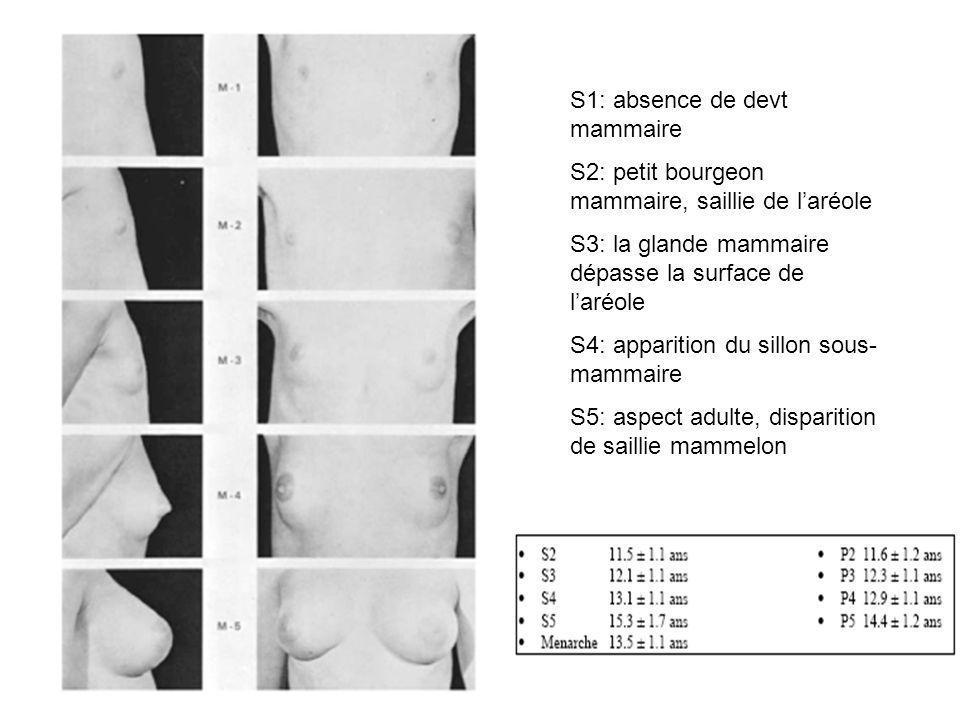 S1: absence de devt mammaire S2: petit bourgeon mammaire, saillie de laréole S3: la glande mammaire dépasse la surface de laréole S4: apparition du si