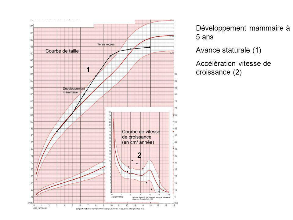 Développement mammaire à 5 ans Avance staturale (1) Accélération vitesse de croissance (2) 1 2