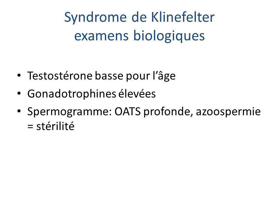 Syndrome de Klinefelter examens biologiques Testostérone basse pour lâge Gonadotrophines élevées Spermogramme: OATS profonde, azoospermie = stérilité