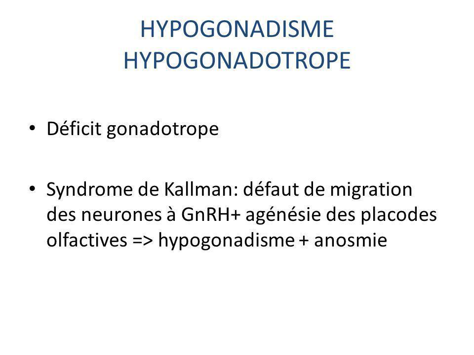 HYPOGONADISME HYPOGONADOTROPE Déficit gonadotrope Syndrome de Kallman: défaut de migration des neurones à GnRH+ agénésie des placodes olfactives => hy
