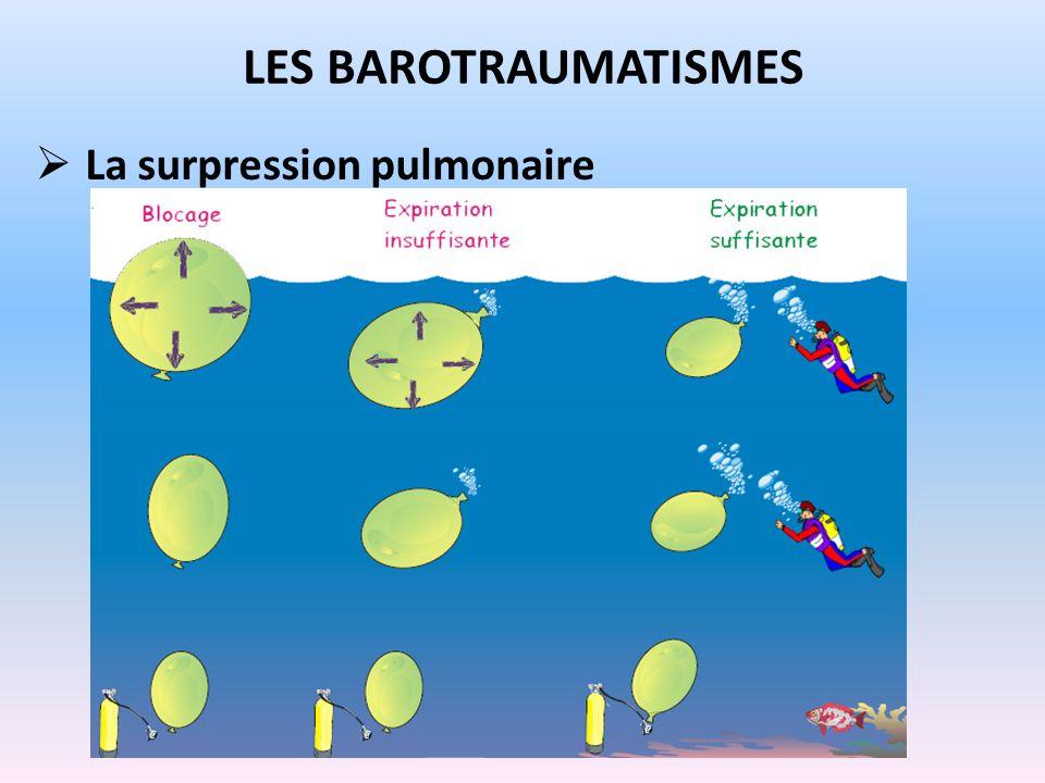 La surpression pulmonaire LES BAROTRAUMATISMES