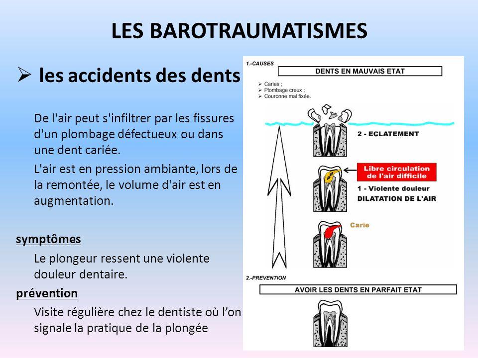 les accidents des dents De l'air peut s'infiltrer par les fissures d'un plombage défectueux ou dans une dent cariée. L'air est en pression ambiante, l