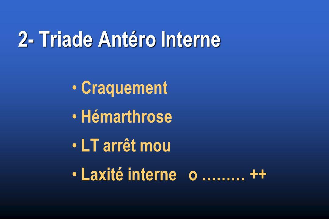 2- Triade Antéro Interne Craquement Hémarthrose LT arrêt mou Laxité interne o ……… ++