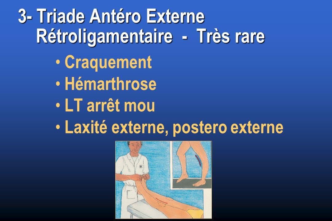 3- Triade Antéro Externe Rétroligamentaire - Très rare Craquement Hémarthrose LT arrêt mou Laxité externe, postero externe
