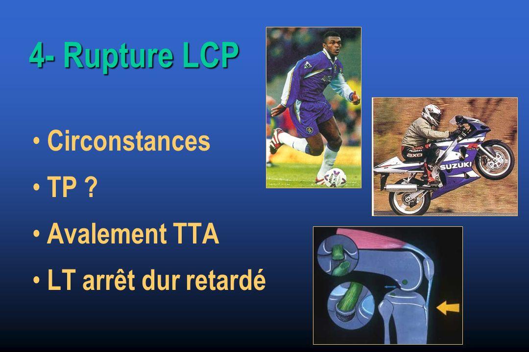 4- Rupture LCP Circonstances TP ? Avalement TTA LT arrêt dur retardé