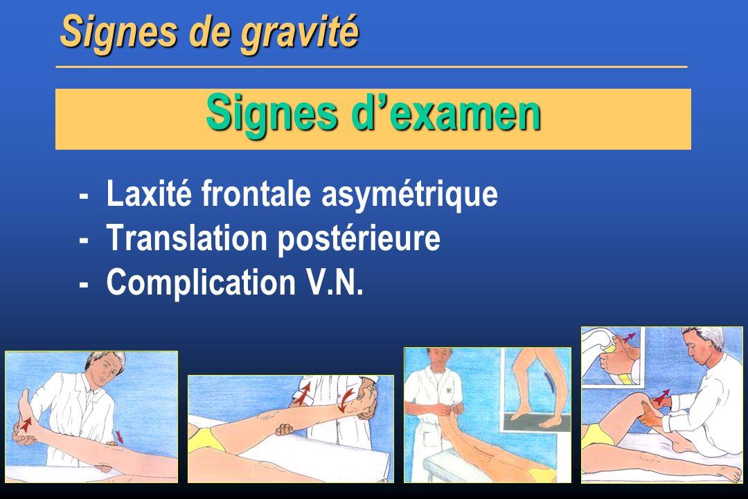 - Laxité frontale asymétrique - Translation postérieure - Complication V.N. Signes de gravité Signes d examen