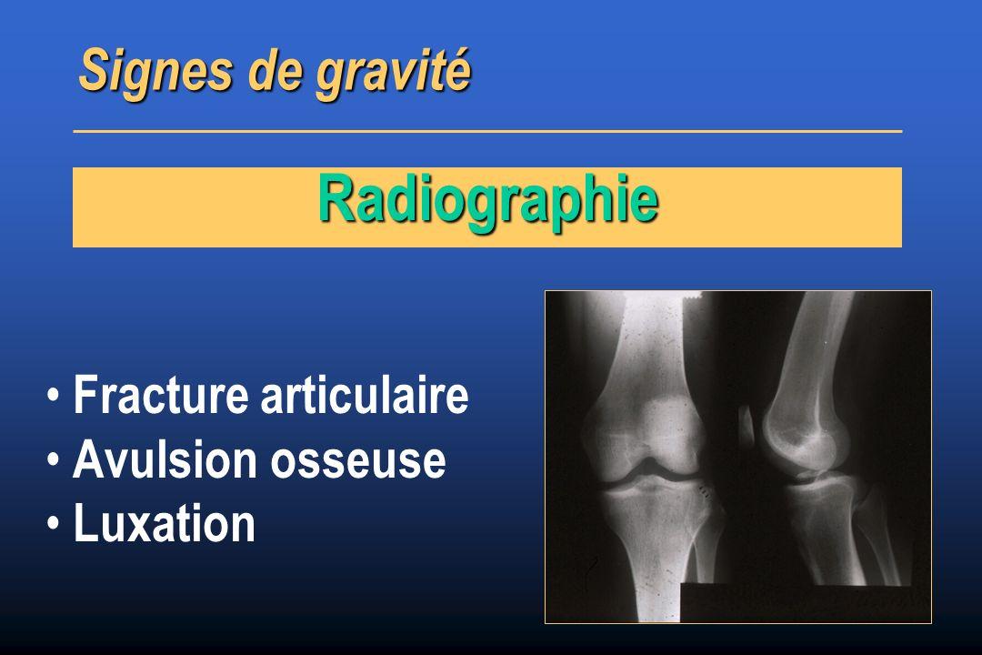 Fracture articulaire Avulsion osseuse Luxation Signes de gravité Radiographie