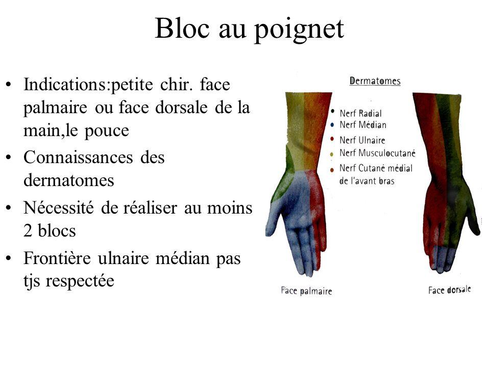 Bloc au poignet Indications:petite chir. face palmaire ou face dorsale de la main,le pouce Connaissances des dermatomes Nécessité de réaliser au moins