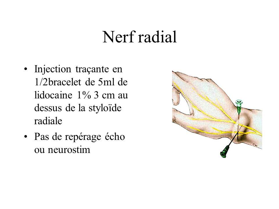 Nerf médian Injection de 5ml de lidocaine1% au niveau du 3° pli de flexion palmaire entre les tendons FRC et FLP Ne pas chercher les paresthésies Structure en nidabeilles a lécho Antépulsion du pouce en neurostim