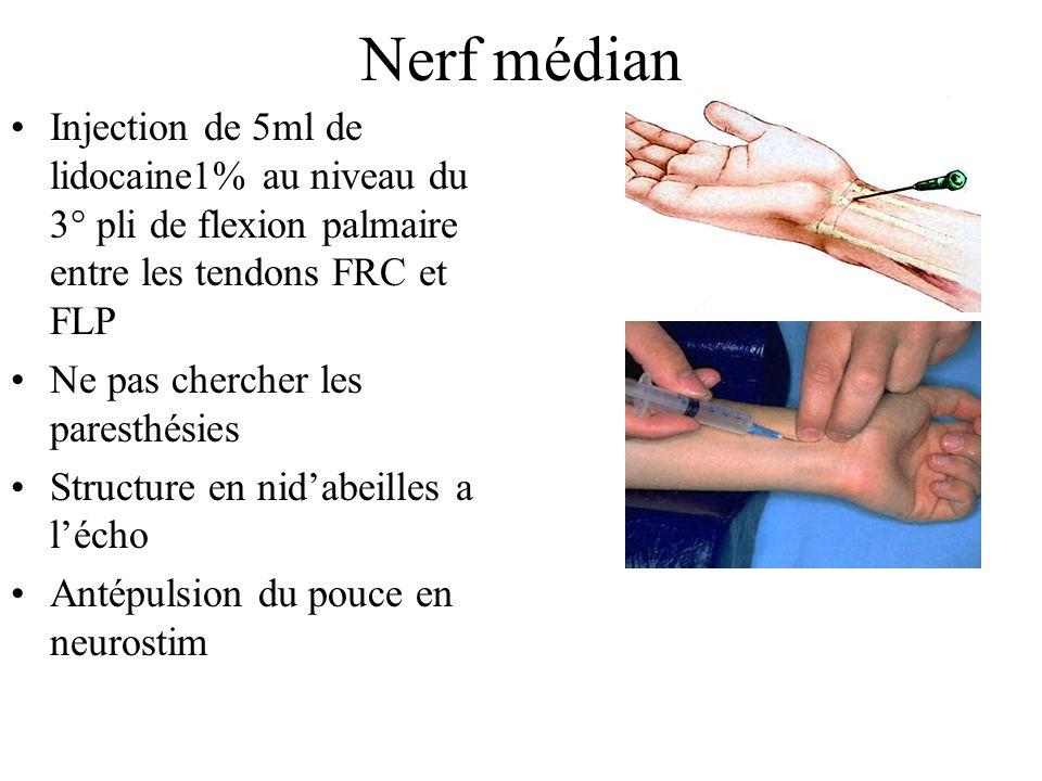 Nerf ulnaire Injection de 5ml de lidocaine 1% 3cm au dessus de lulna ds la loge de GUYON entre le FUCet lulna Repérage écho/artère ulnaire Flexion des MCP,extension des IPD en neurostim