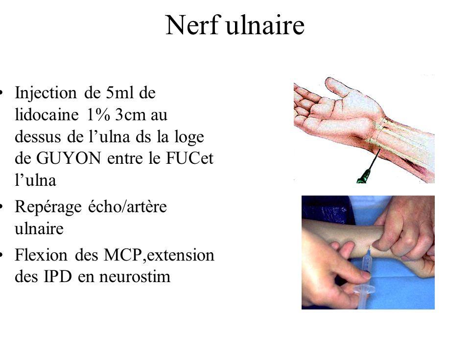 Nerf ulnaire Injection de 5ml de lidocaine 1% 3cm au dessus de lulna ds la loge de GUYON entre le FUCet lulna Repérage écho/artère ulnaire Flexion des