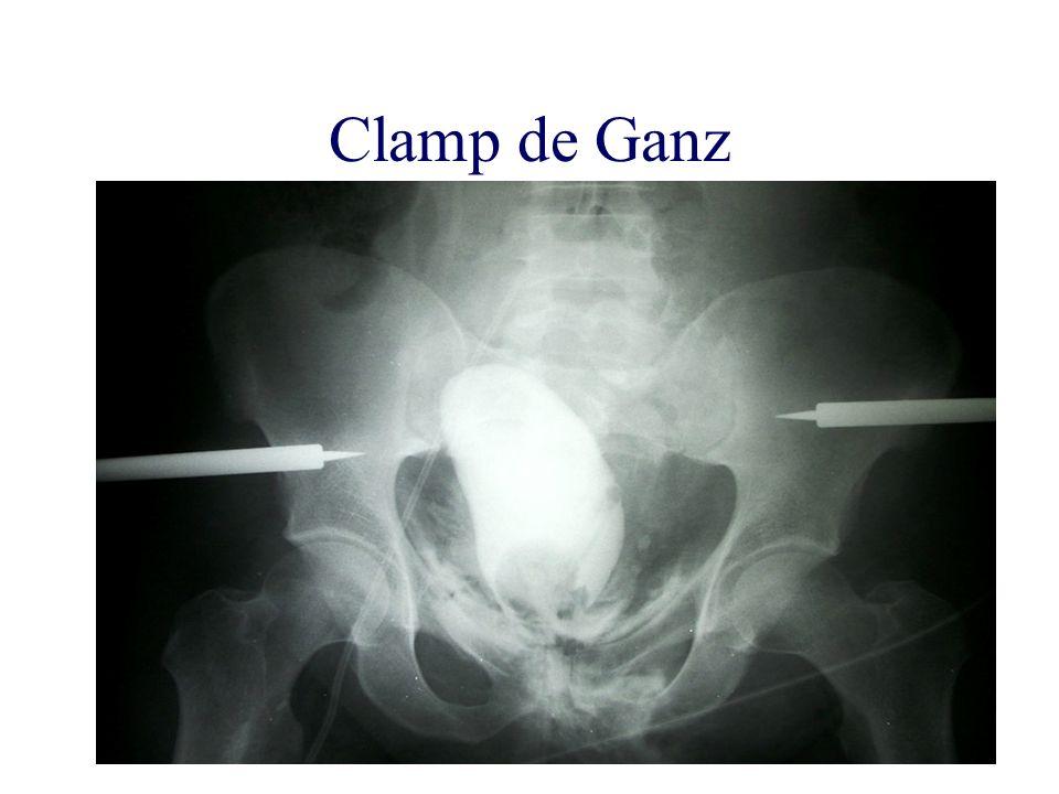 Clamp de Ganz