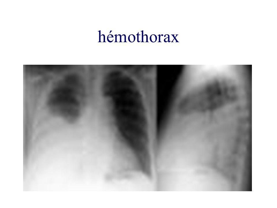 hémothorax