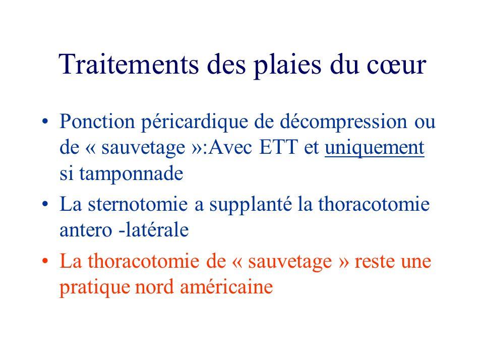 Traitements des plaies du cœur Ponction péricardique de décompression ou de « sauvetage »:Avec ETT et uniquement si tamponnade La sternotomie a suppla