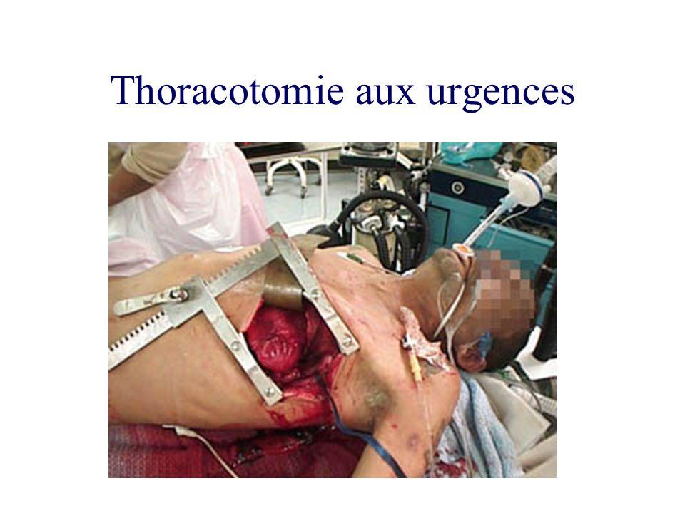 Thoracotomie aux urgences