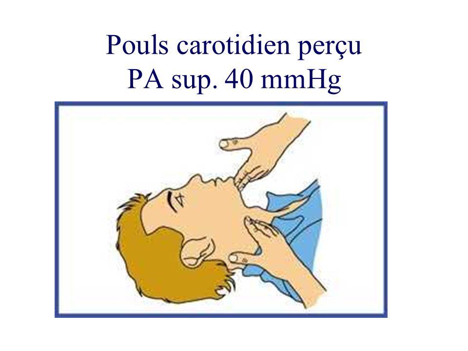 Pouls carotidien perçu PA sup. 40 mmHg