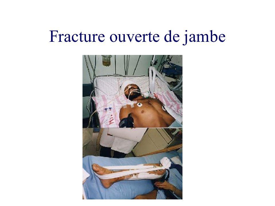 Fracture ouverte de jambe