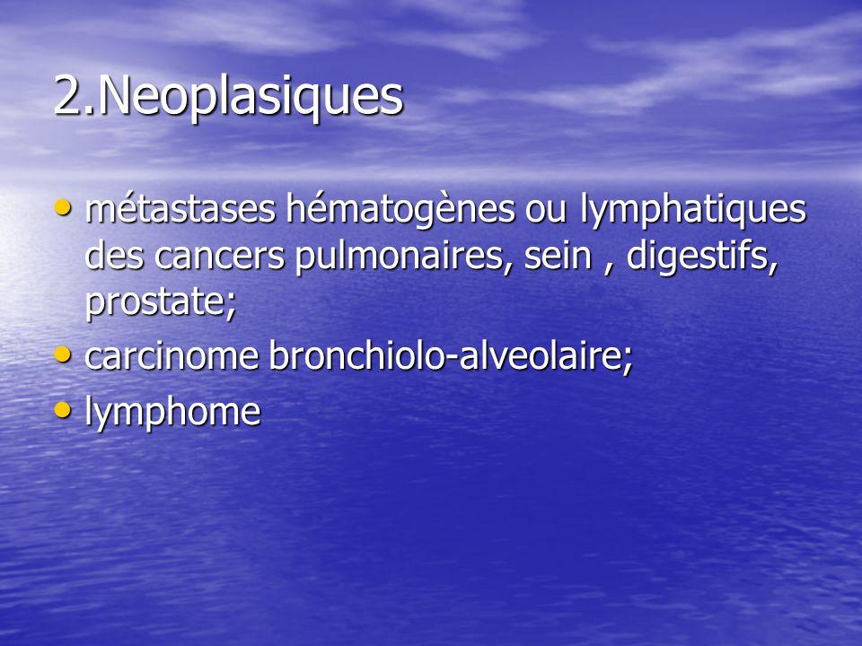 2.Neoplasiques métastases hématogènes ou lymphatiques des cancers pulmonaires, sein, digestifs, prostate; métastases hématogènes ou lymphatiques des c