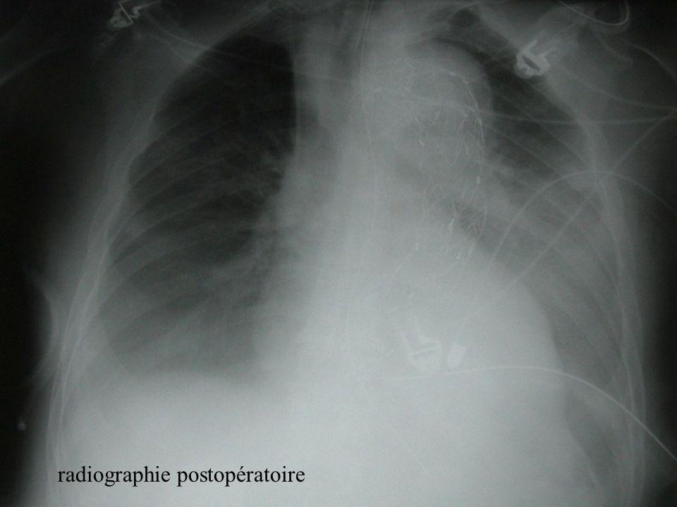 radiographie postopératoire